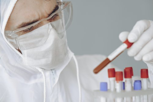 Analisis Covid 19 Pcr Serologia Laboratorios Navarra